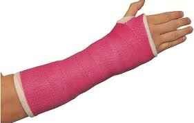 Pink arm cast